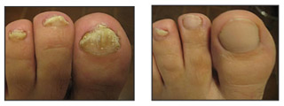 Fungal Nail Disease cured at the Wilson Foot Clinic